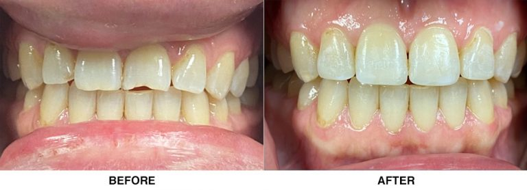 before and after patient 01