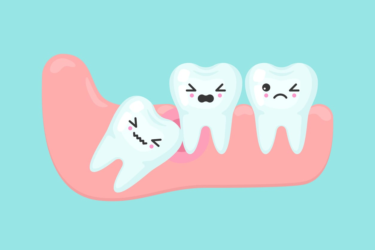 If you don't get your wisdom teeth removed, you risk infection.