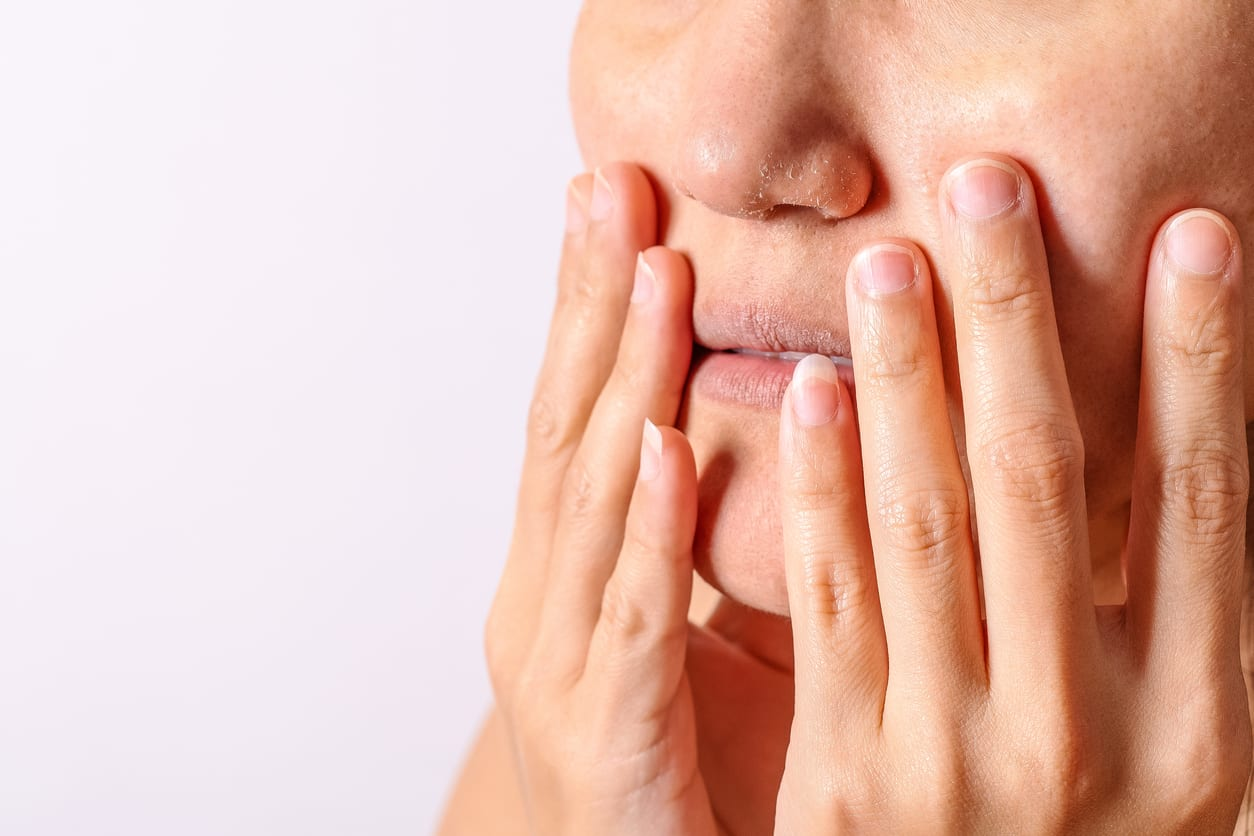 Person with dry mouth holding lips